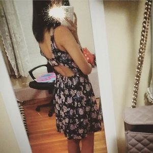 Abercrombie & Fitch Open Back Skater Dress